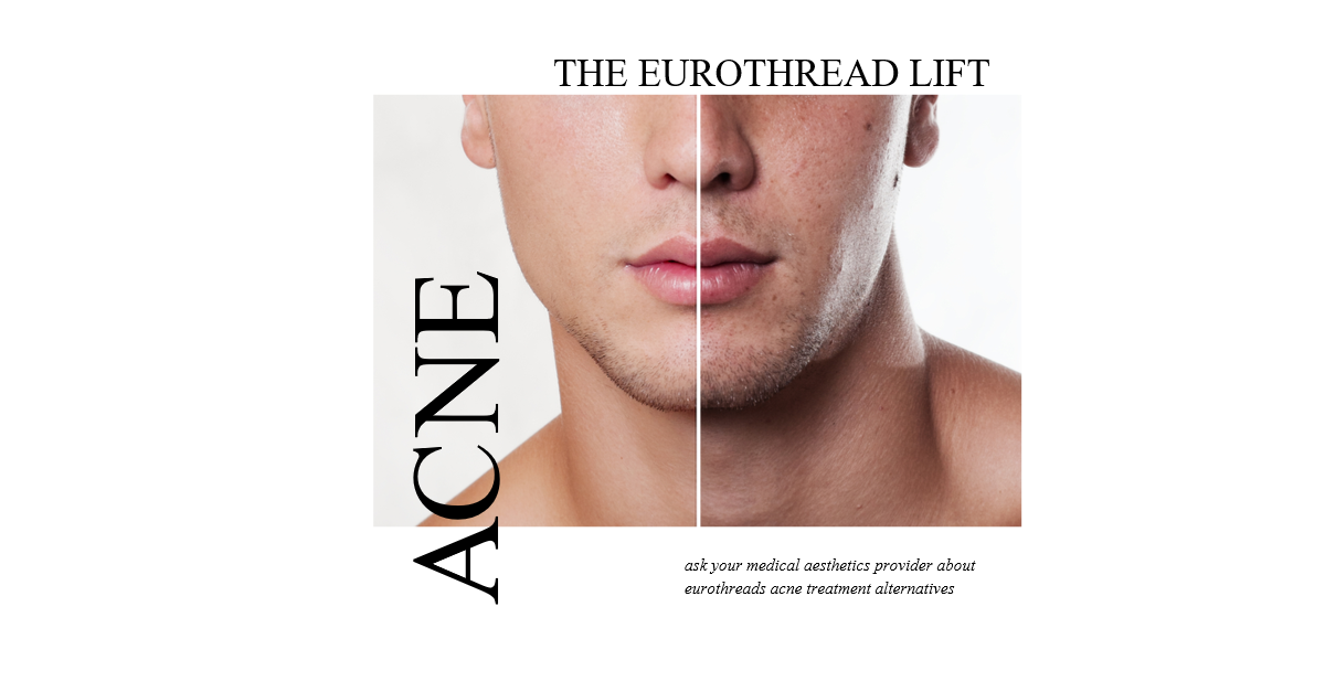 the eurothread lift - EuroThreads Media